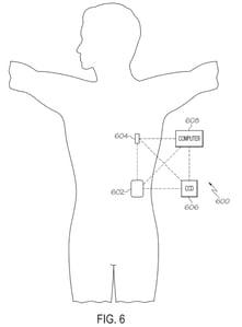 Medtronic_System